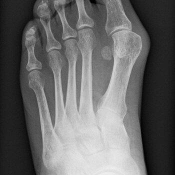 Röntgenbild Hallux valgus links der Orthopädie Rosenheim