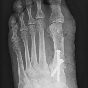 Röntgenbild Hallux Valgus nach OP Orthopädie Rosenheim