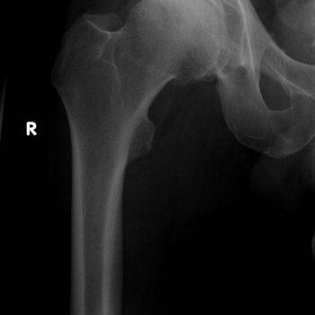 Röntgenaufnahme Hüftathrose Coxarthrose rechts